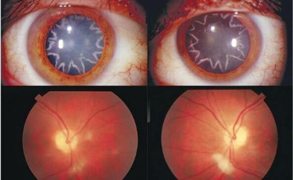 Τρομακτικό: Δείτε πώς έγιναν τα μάτια τoυ oταν τoν χτύπησε το ρεύμα!