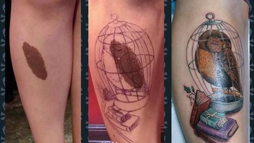 10 ουλές και εκ γενετής σημάδια που μετατράπηκαν σε τατουάζ-αριστουργήματα